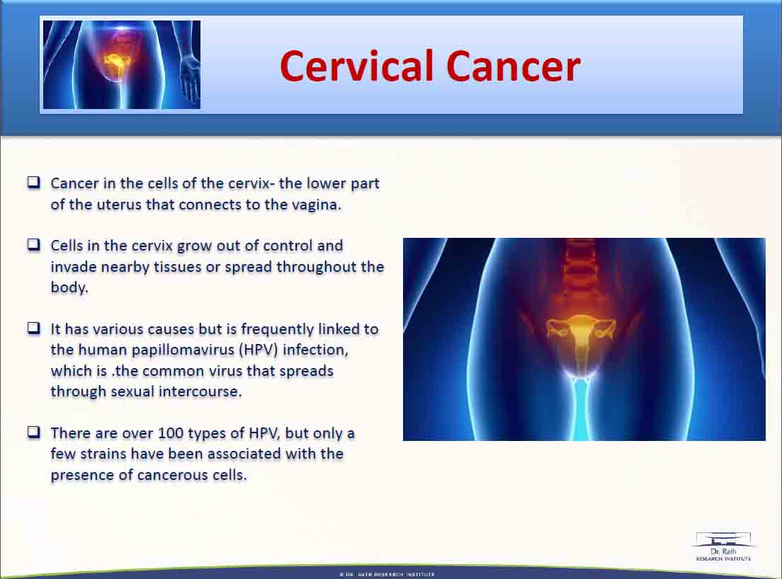 cervial cancer