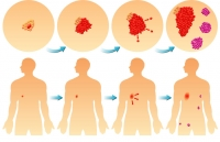 sarcoma skin cancer micronutrients