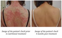 skin disease before after psoriasis study micronutrients