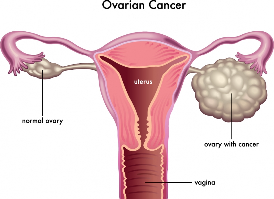 Benefits Of Micronutrients In Ovarian Cancer - Dr. Rath Research ...