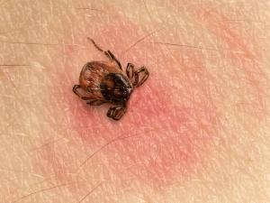 The Benefits of Micronutrients in Lyme Disease - Tick bite