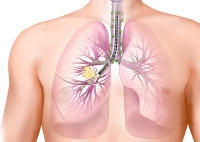lung cancer micronutrients