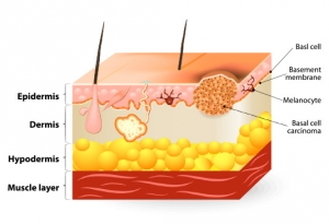 skin cancer melanoma micronutrients